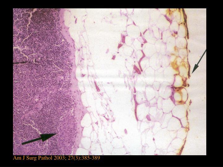 Am J Surg Pathol 2003; 27(3):385-389