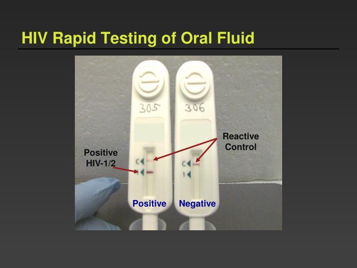 HIV Rapid Testing of Oral Fluid