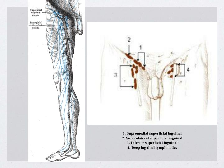 1. Supromedial superficial inguinal
