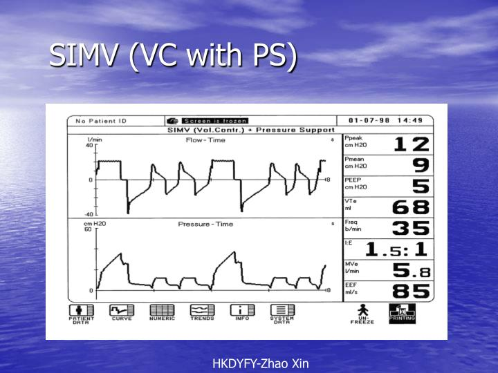 SIMV (VC with PS)