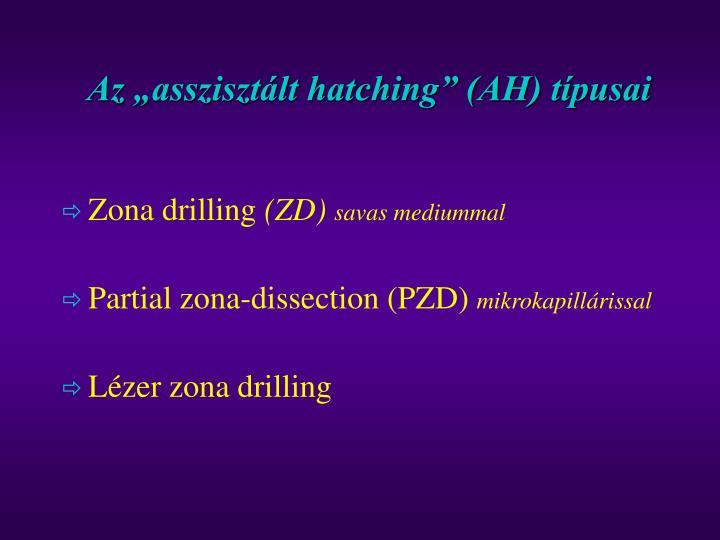 """Az """"asszisztált hatching"""" (AH) típusai"""