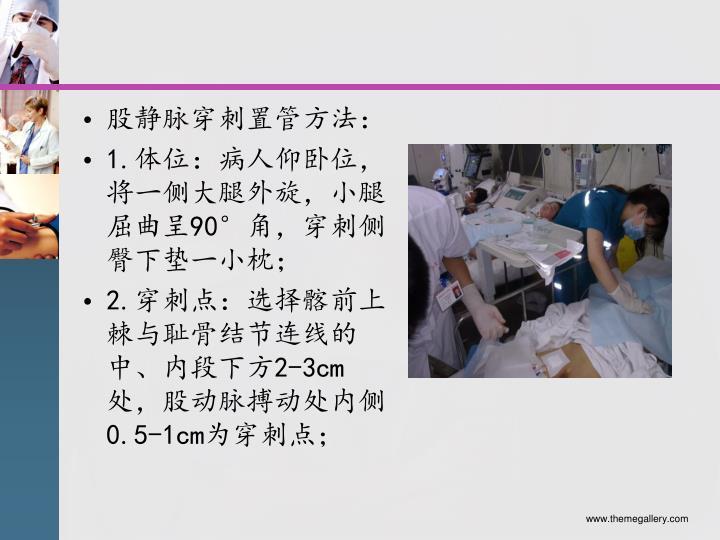 股静脉穿刺置管方法: