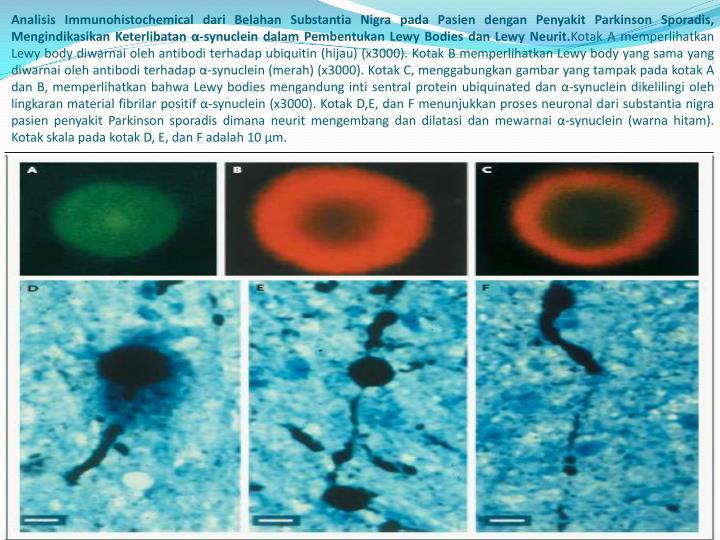 Analisis Immunohistochemical dari Belahan Substantia Nigra pada Pasien dengan Penyakit Parkinson Sporadis, Mengindikasikan Keterlibatan α-synuclein dalam Pembentukan Lewy Bodies dan Lewy Neurit.