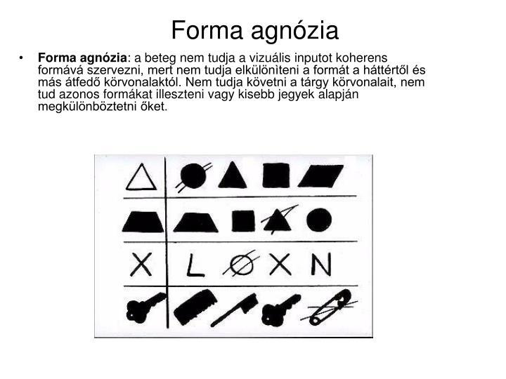 Forma agnózia