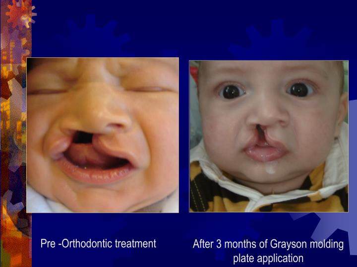 Pre -Orthodontic treatment