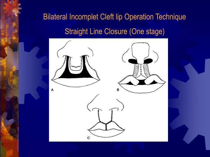 Bilateral Incomplet Cleft lip Operation Technique