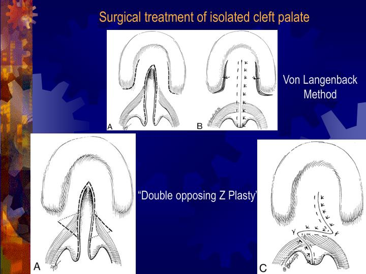 Surgical treatment of isolated cleft palate