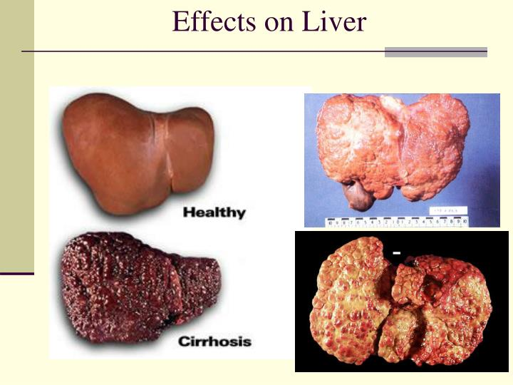 Effects on Liver