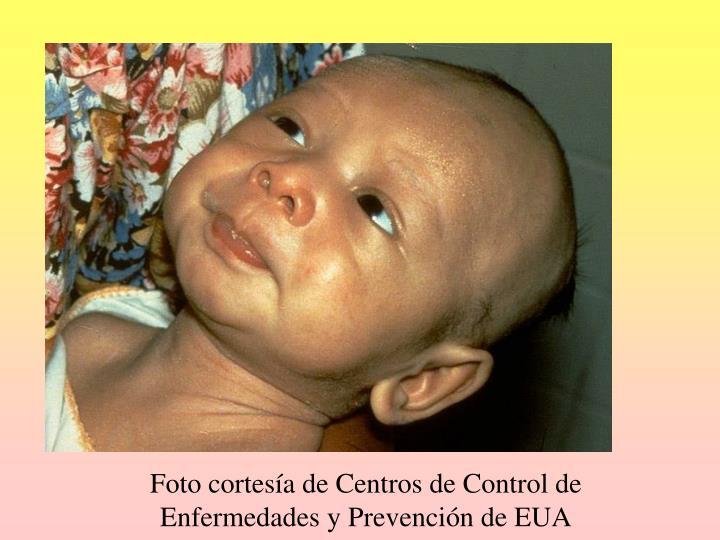 Foto cortesía de Centros de Control de Enfermedades y Prevención de EUA