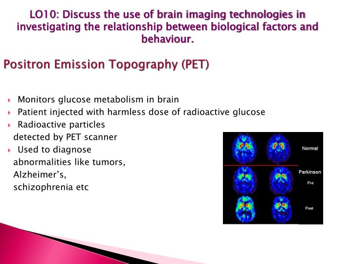 LO10: Discuss the use of brain imaging technologies in investigating the relationship between biological factors and behaviour.