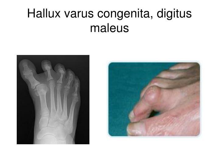 Hallux varus congenita, digitus maleus