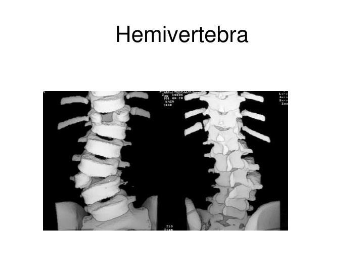 Hemivertebra