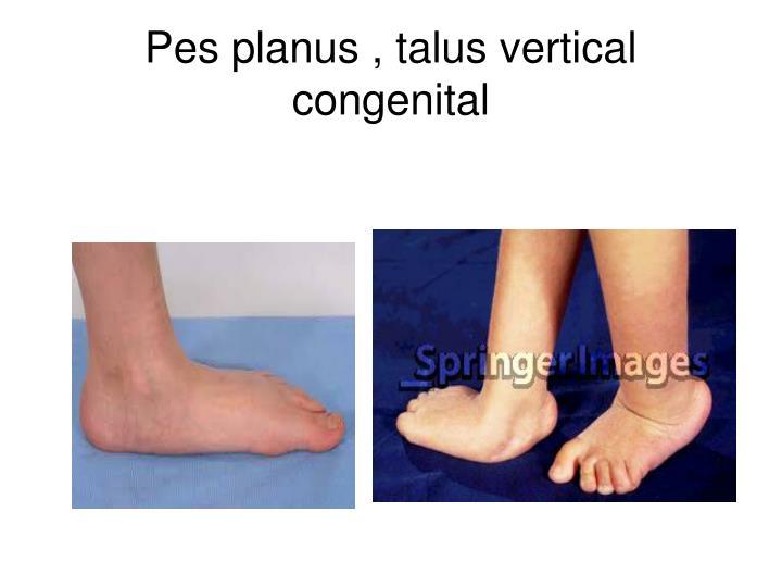 Pes planus , talus vertical congenital