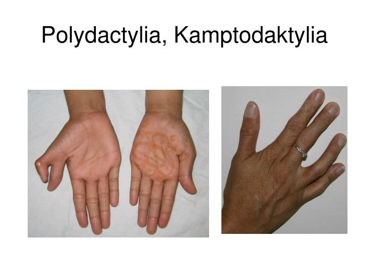 Polydactylia, Kamptodaktylia