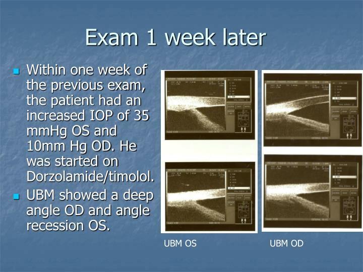 Exam 1 week later