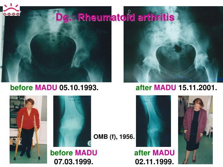Dg.: Rheumatoid arthritis
