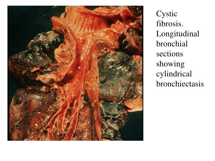Cystic fibrosis. Longitudinal bronchial sections showing cylindrical bronchiectasis