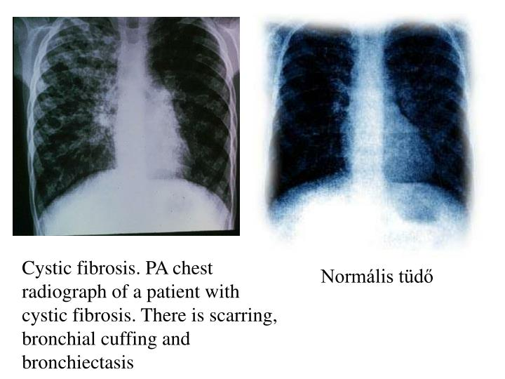 Cystic fibrosis. PA chest radiograph of a patient with cystic fibrosis. There is scarring, bronchial cuffing and bronchiectasis