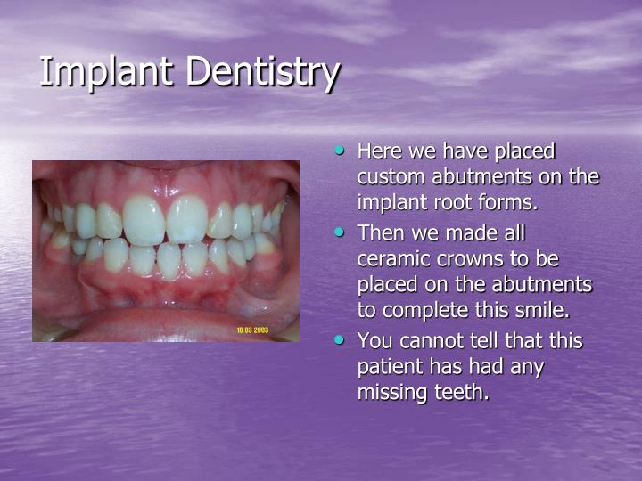 Implant dentistry1