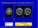 16 element array vs head coil @ 3 t
