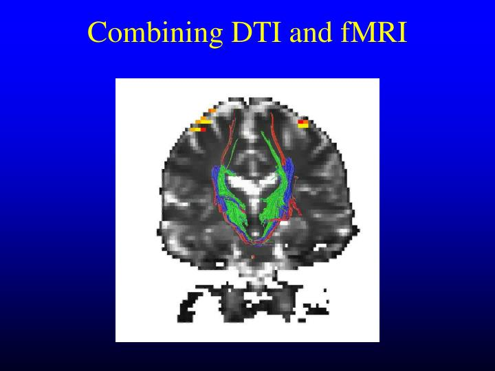 Combining DTI and fMRI