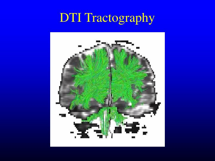 DTI Tractography