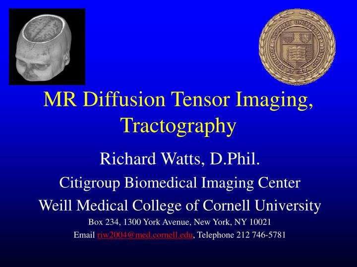 Mr diffusion tensor imaging tractography