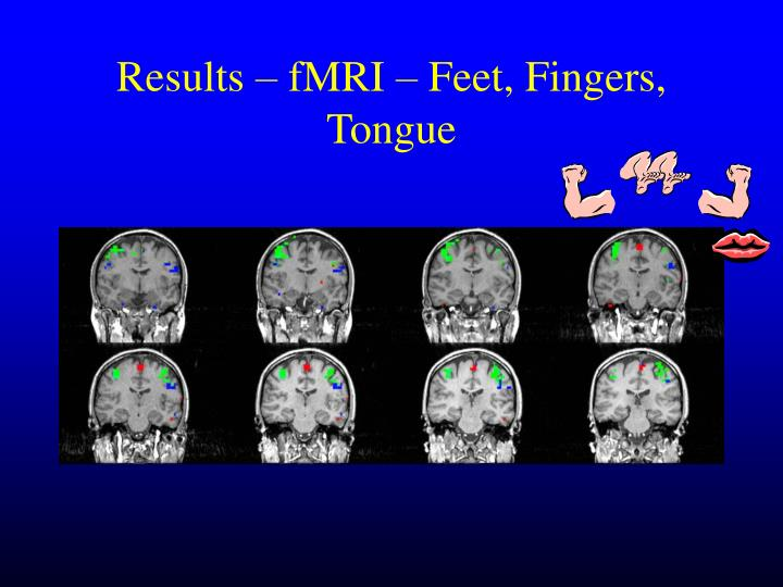 Results – fMRI – Feet, Fingers, Tongue