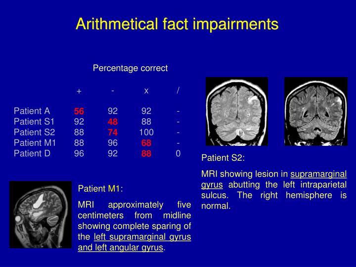 Arithmetical fact impairments