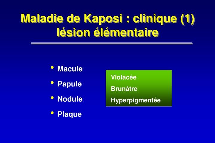 Maladie de Kaposi : clinique (1)