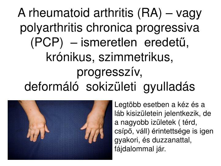 A rheumatoid arthritis (RA) – vagy polyarthritis chronica progressiva (PCP)  – ismeretlen  eredetű, krónikus, szimmetrikus,  progresszív,
