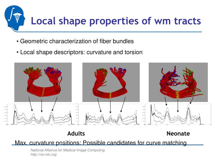 Local shape properties of wm tracts