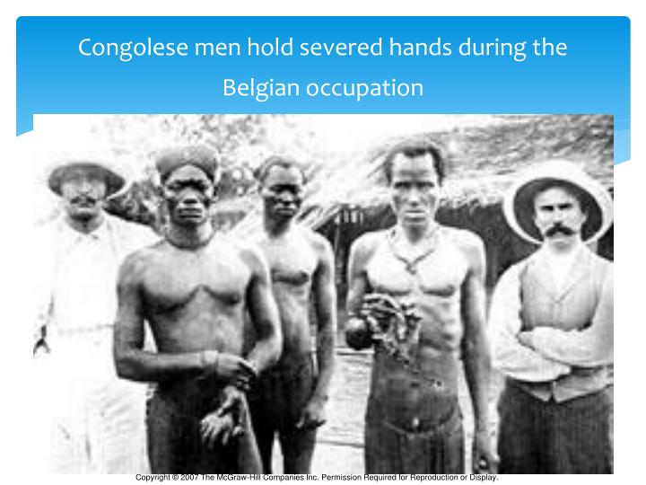 Congolese men hold severed hands during the Belgian occupation