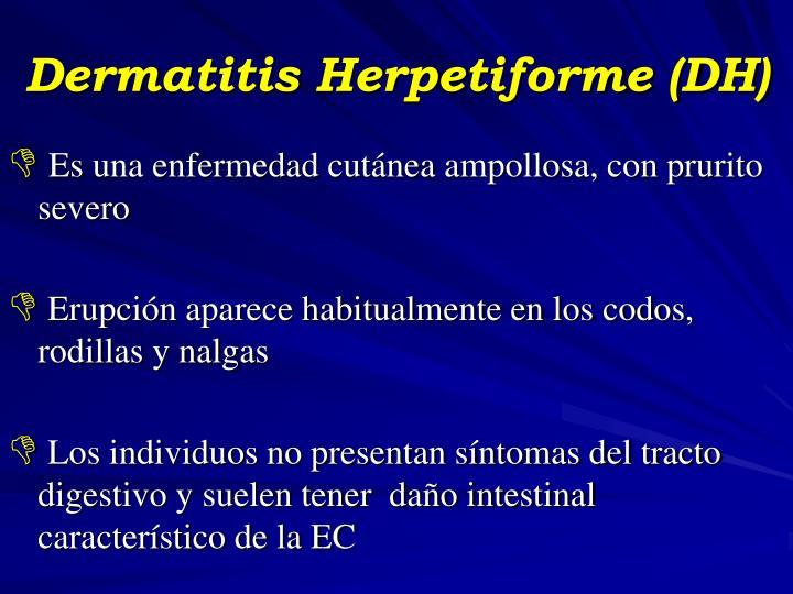 Dermatitis Herpetiforme (DH)