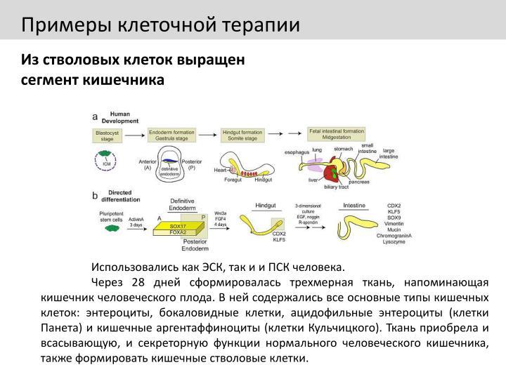 Примеры клеточной терапии