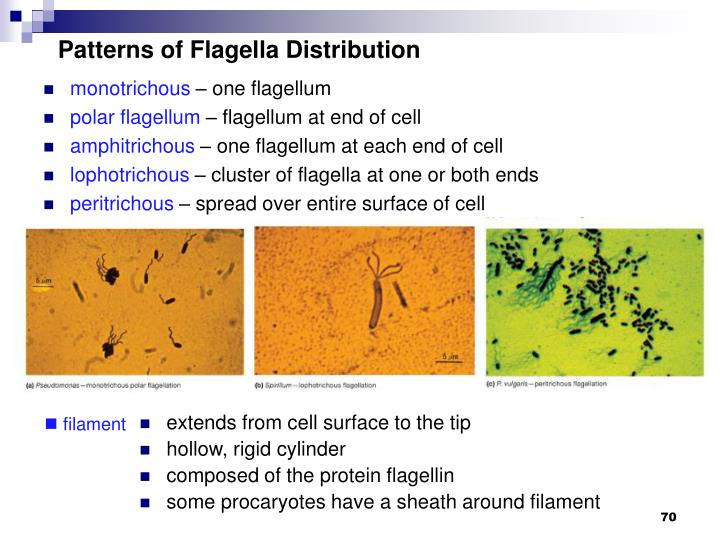Patterns of Flagella Distribution