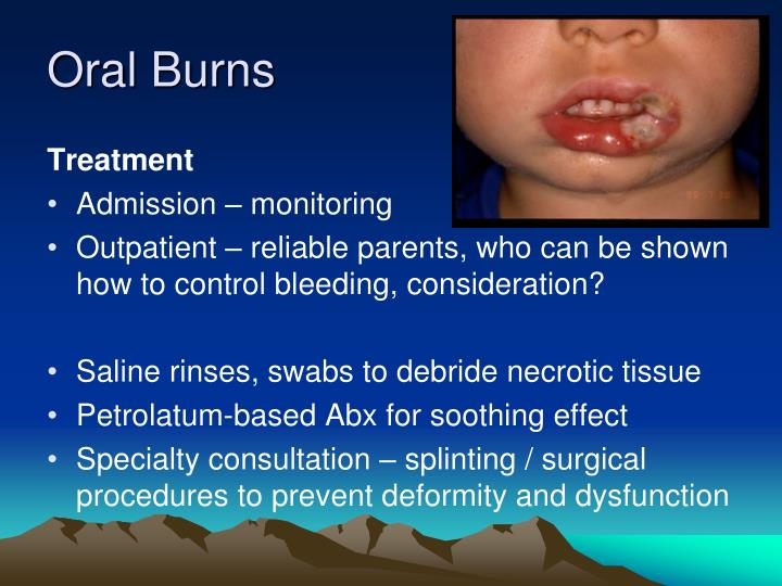 Oral Burns