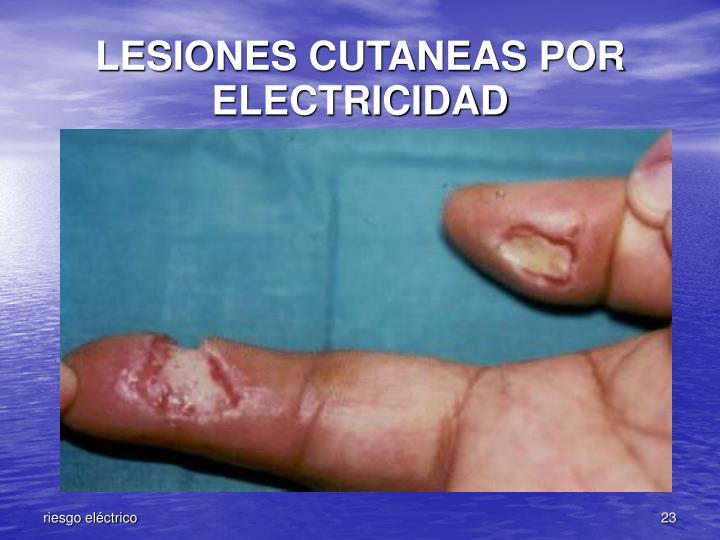 LESIONES CUTANEAS POR ELECTRICIDAD