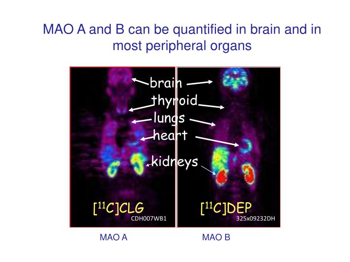 MAO A and B can be quantified in brain and in most peripheral organs