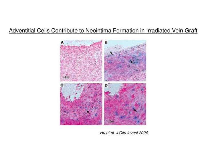 Adventitial Cells Contribute to Neointima Formation in Irradiated Vein Graft