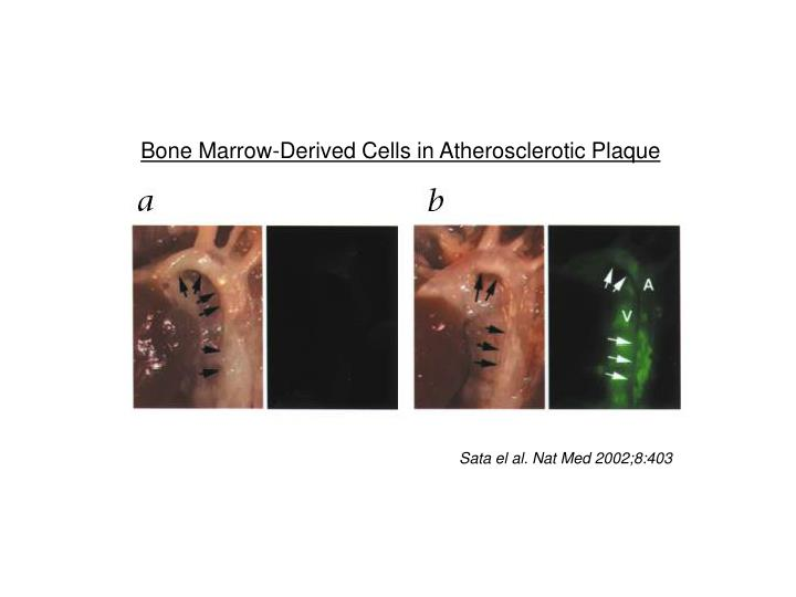 Bone Marrow-Derived Cells in Atherosclerotic Plaque