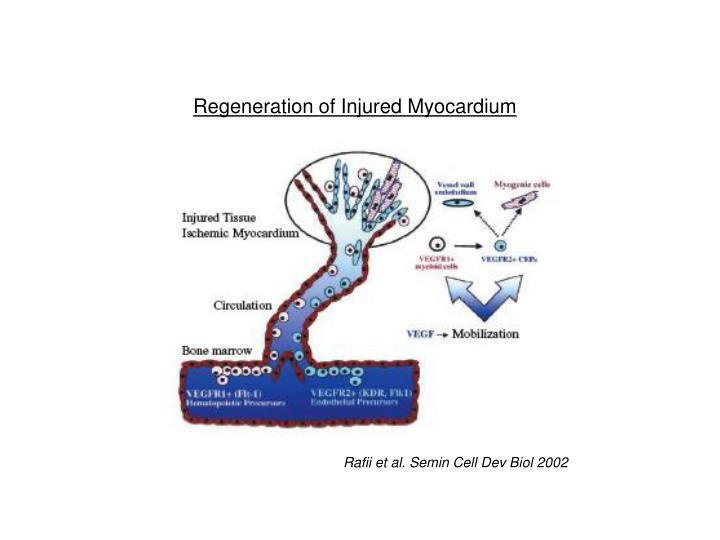 Regeneration of Injured Myocardium