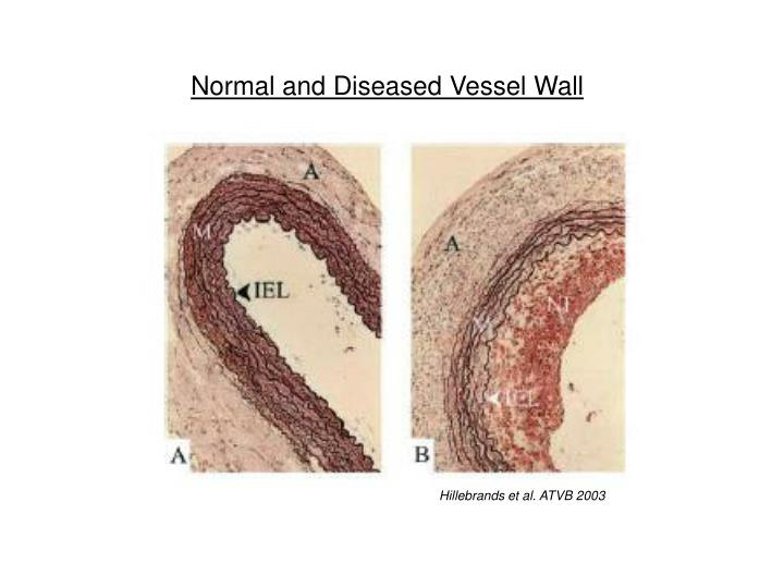 Normal and Diseased Vessel Wall