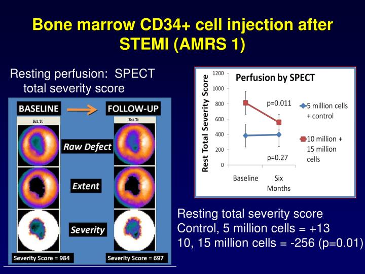 Bone marrow CD34+ cell injection after STEMI (AMRS 1)
