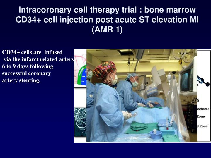 Intracoronary cell therapy trial :