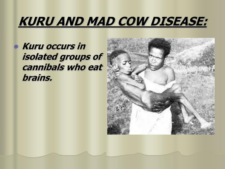 Kuru occurs in isolated groups of cannibals who eat brains.