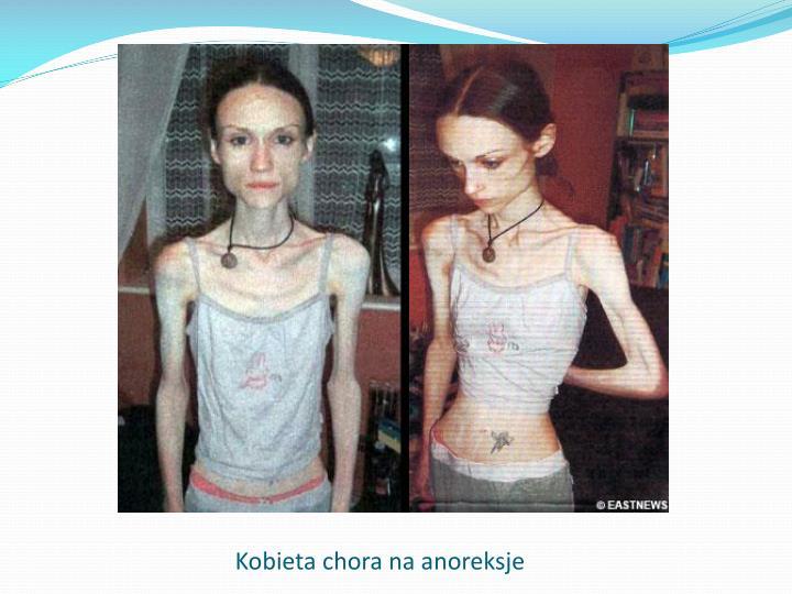 Kobieta chora na anoreksje