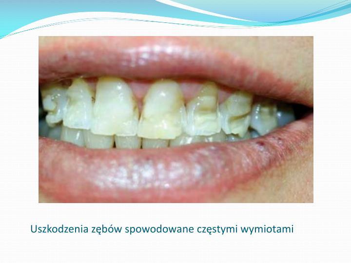 Uszkodzenia zębów spowodowane częstymi wymiotami