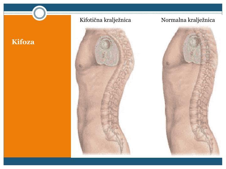 Kifotična kralježnica                      Normalna kralježnica