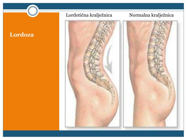 Lordotična kralježnica               Normalna kralježnica